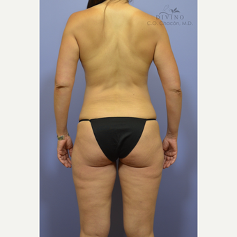 35-44 year old woman treated with Weight Loss before 3418884