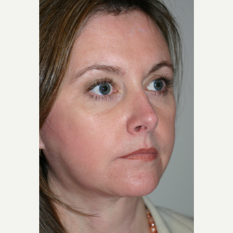 45-54 year old woman treated with Facelift after 3154197