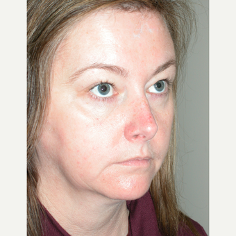 45-54 year old woman treated with Facelift before 3154197