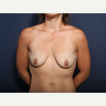25-34 year old woman treated with Breast Lift with Implants (view 1 of 2) before 3425435