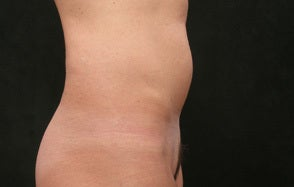 40 year old coolsculpting before 926487