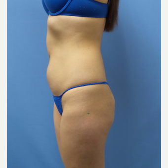 18-24 year old woman treated with Liposuction before 3378383