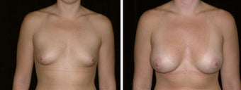 26 year old female, breast augmentation  before 628322