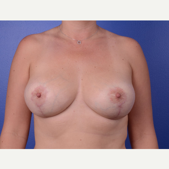 45-54 year old woman treated with Breast Implant Revision after 2994246