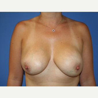 45-54 year old woman treated with Breast Implant Revision before 2994246