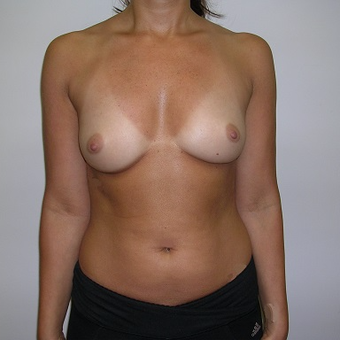 35-44 year old woman treated with Breast Augmentation before 3776295