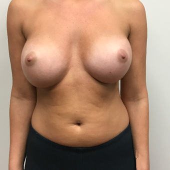 35-44 year old woman treated with Breast Augmentation after 3776295