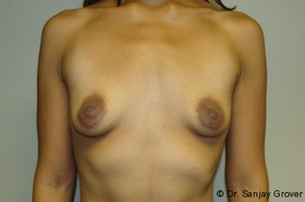 Breast Augmentation before 961341