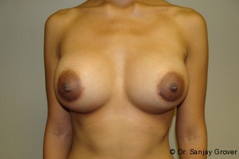 Breast Augmentation after 961341