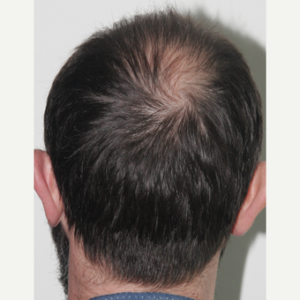 35-44 year old man treated with FUE Hair Transplant before 3522648