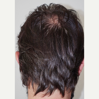 35-44 year old man treated with FUE Hair Transplant after 3522648