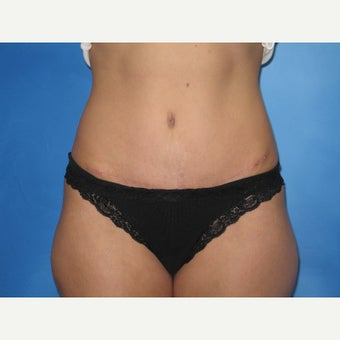 41 yr old female - Tummy Tuck with Liposuction of the Flanks after 2026880