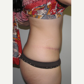 25-34 year old woman treated with Tummy Tuck after 3401038