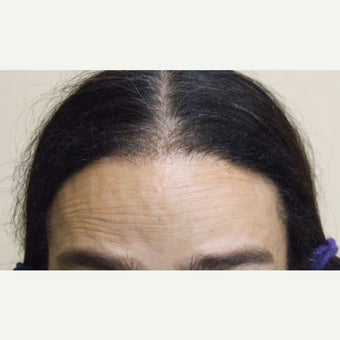 45-54 year old woman treated with Forehead Reduction with Hair Transplant to lower and round out the corners after 1973872