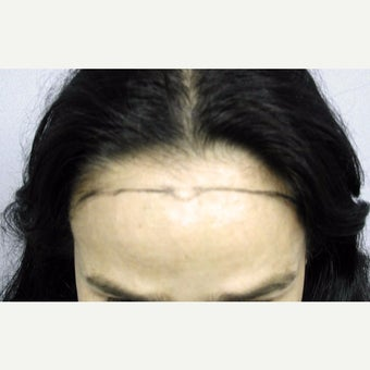 45-54 year old woman treated with Forehead Reduction with Hair Transplant to lower and round out the corners before 1973872
