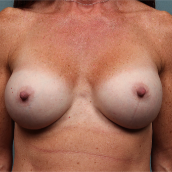 45-54 year old woman treated with Breast Augmentation after 3265149