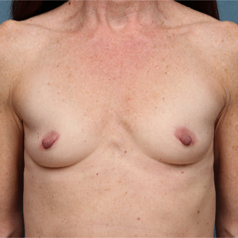 45-54 year old woman treated with Breast Augmentation before 3265149