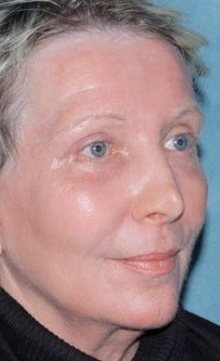 Laser resurfacing treatment for wrinkles 376154