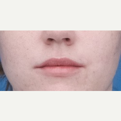 18-24 year old woman treated with Restylane Silk after 3764360