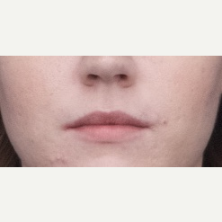 18-24 year old woman treated with Restylane Silk before 3764360