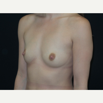 25-34 year old woman treated with Breast Implants before 3652126