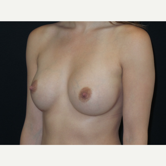 25-34 year old woman treated with Breast Implants after 3652126
