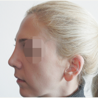 25-34 year old woman treated with Rhinoplasty after 3107616