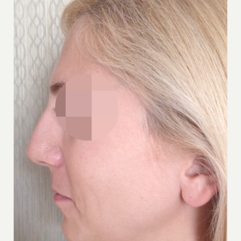 25-34 year old woman treated with Rhinoplasty before 3107616