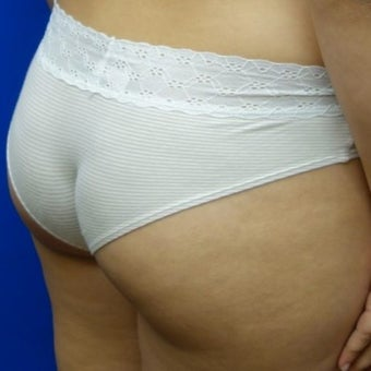 Brazilian Butt Lift 1571023