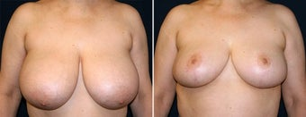 Breast Reduction before 996871