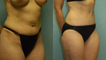 50 year-old woman one year after drainless tummy tuck and liposuction of the inner and outer thighs before 3261424