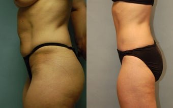 50 year-old woman one year after drainless tummy tuck and liposuction of the inner and outer thighs after 3261424