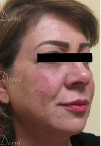 45-54 year old woman treated with Belotero