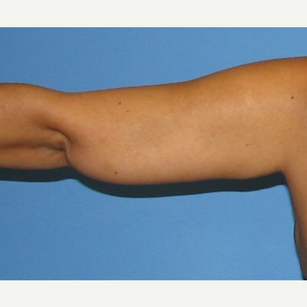 35-44 year old woman treated with Arm Lift after 2979295