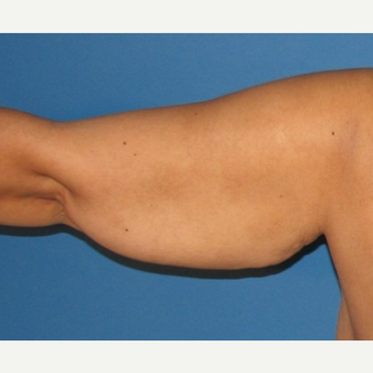 35-44 year old woman treated with Arm Lift before 2979295