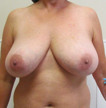 Breast Symmetry and Breast Reduction for this 44 Year Old Female 1432246