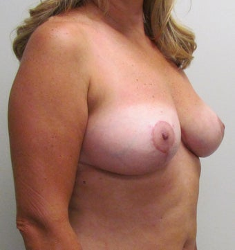 Breast Symmetry and Breast Reduction for this 44 Year Old Female after 1432246
