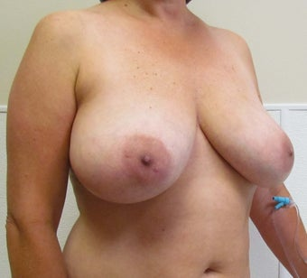 Breast Symmetry and Breast Reduction for this 44 Year Old Female before 1432246