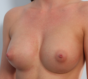 Breast Augmentation 920078