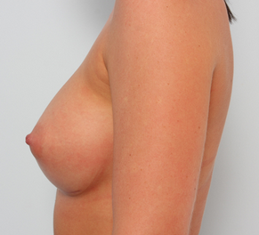 Breast Augmentation after 920078