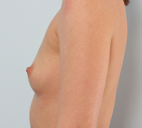 Breast Augmentation before 920078