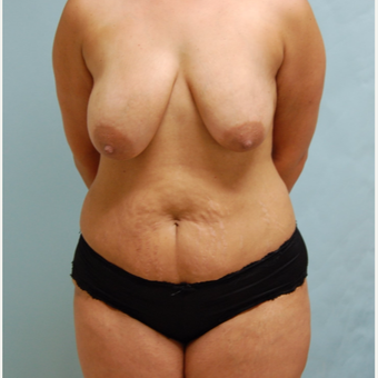 35-44 year old woman treated with Mommy Makeover before 3666351
