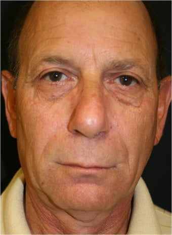 62 year old male treated with Sculpra injections for lost facial volume and skin sagging before 718315