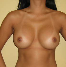 Breast Augmentation with Implants 390386
