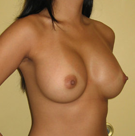 Breast Augmentation with Implants after 390386