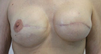 Revision of Reconstructed Breast before 527139