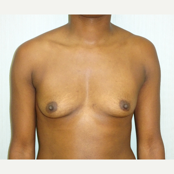 25-34 year old woman treated with Breast Augmentation before 3823165