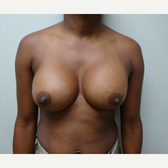 25-34 year old woman treated with Breast Augmentation after 3823165