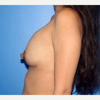25-34 year old woman treated with Breast Implant Revision before 3366875