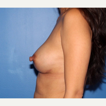 25-34 year old woman treated with Breast Implant Revision after 3366875